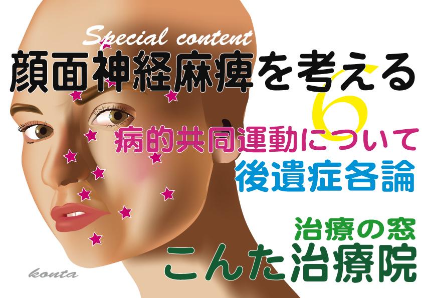 顔面神経麻痺治療 病的共同運動 こんた治療院 小田原市